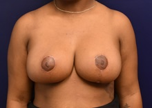 Breast Reduction After Photo by Richard Reish, MD, FACS; New York, NY - Case 30803