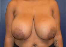 Breast Reduction Before Photo by Richard Reish, MD, FACS; New York, NY - Case 30803