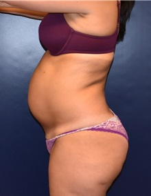 Tummy Tuck Before Photo by Richard Reish, MD, FACS; New York, NY - Case 30814
