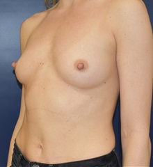 Breast Augmentation Before Photo by Richard Reish, MD, FACS; New York, NY - Case 30815