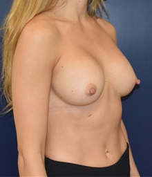 Breast Augmentation After Photo by Richard Reish, MD, FACS; New York, NY - Case 30815