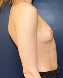 Breast Augmentation Before Photo by Richard Reish, MD, FACS; New York, NY - Case 30815
