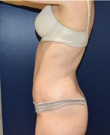 Tummy Tuck After Photo by Richard Reish, MD, FACS; New York, NY - Case 30816