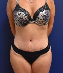Tummy Tuck After Photo by Richard Reish, MD, FACS; New York, NY - Case 30819