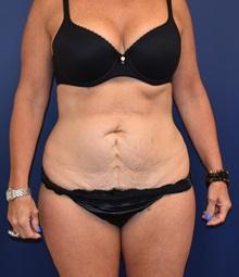 Tummy Tuck Before Photo by Richard Reish, MD, FACS; New York, NY - Case 30819