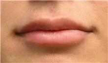 Lip Augmentation / Enhancement Before Photo by Richard Reish, MD, FACS; New York, NY - Case 30820