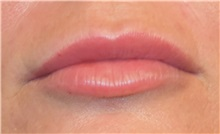Lip Augmentation / Enhancement After Photo by Richard Reish, MD, FACS; New York, NY - Case 30823
