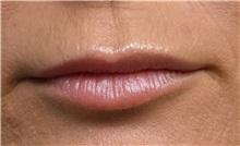 Lip Augmentation / Enhancement Before Photo by Richard Reish, MD, FACS; New York, NY - Case 30823