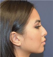 Rhinoplasty Before Photo by Richard Reish, MD, FACS; New York, NY - Case 30825