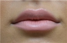 Lip Augmentation / Enhancement After Photo by Richard Reish, MD, FACS; New York, NY - Case 30826
