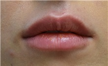 Lip Augmentation / Enhancement After Photo by Richard Reish, MD, FACS; New York, NY - Case 30827