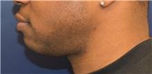 Chin Augmentation Before Photo by Richard Reish, MD, FACS; New York, NY - Case 30828