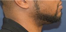 Chin Augmentation After Photo by Richard Reish, MD, FACS; New York, NY - Case 30828