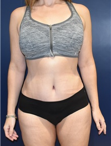 Tummy Tuck After Photo by Richard Reish, MD, FACS; New York, NY - Case 30829