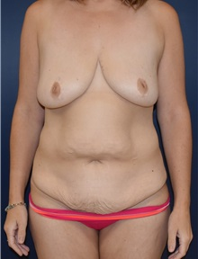 Tummy Tuck Before Photo by Richard Reish, MD, FACS; New York, NY - Case 30829