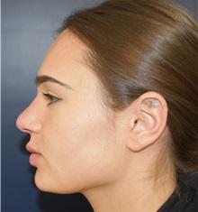 Rhinoplasty After Photo by Richard Reish, MD, FACS; New York, NY - Case 30830