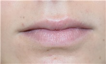 Lip Augmentation / Enhancement Before Photo by Richard Reish, MD, FACS; New York, NY - Case 30831