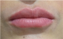 Lip Augmentation / Enhancement After Photo by Richard Reish, MD, FACS; New York, NY - Case 30833