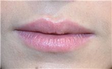 Lip Augmentation / Enhancement Before Photo by Richard Reish, MD, FACS; New York, NY - Case 30833