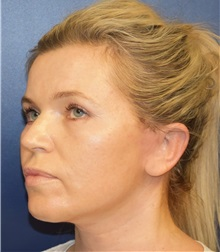 Facelift After Photo by Richard Reish, MD, FACS; New York, NY - Case 30835