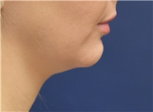 Chin Augmentation Before Photo by Richard Reish, MD, FACS; New York, NY - Case 30836