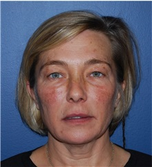 Facelift Before Photo by Richard Reish, MD, FACS; New York, NY - Case 30837