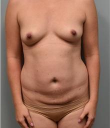 Tummy Tuck Before Photo by Richard Reish, MD, FACS; New York, NY - Case 30838