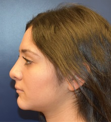 Rhinoplasty After Photo by Richard Reish, MD, FACS; New York, NY - Case 30889