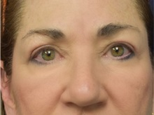 Eyelid Surgery After Photo by Richard Reish, MD, FACS; New York, NY - Case 30890