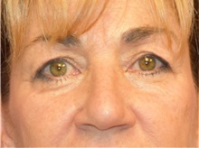 Eyelid Surgery Before Photo by Richard Reish, MD, FACS; New York, NY - Case 30890
