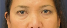 Eyelid Surgery Before Photo by Richard Reish, MD, FACS; New York, NY - Case 30891