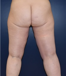 Liposuction After Photo by Richard Reish, MD, FACS; New York, NY - Case 30893