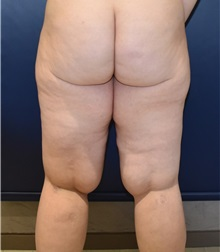 Liposuction Before Photo by Richard Reish, MD, FACS; New York, NY - Case 30893