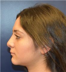 Rhinoplasty After Photo by Richard Reish, MD, FACS; New York, NY - Case 30922
