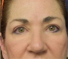 Eyelid Surgery After Photo by Richard Reish, MD, FACS; New York, NY - Case 30923