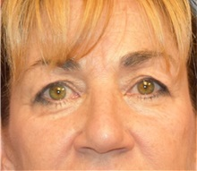 Eyelid Surgery Before Photo by Richard Reish, MD, FACS; New York, NY - Case 30923