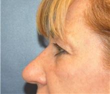 Eyelid Surgery Before Photo by Richard Reish, MD, FACS; New York, NY - Case 30923