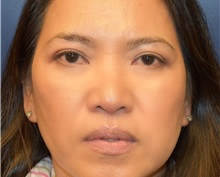 Eyelid Surgery After Photo by Richard Reish, MD, FACS; New York, NY - Case 30924