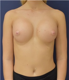 Breast Augmentation After Photo by Richard Reish, MD, FACS; New York, NY - Case 30928