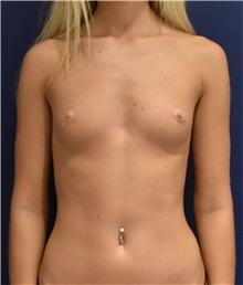 Breast Augmentation Before Photo by Richard Reish, MD, FACS; New York, NY - Case 30928