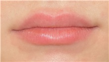 Lip Augmentation / Enhancement After Photo by Richard Reish, MD, FACS; New York, NY - Case 30931
