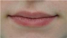 Lip Augmentation / Enhancement Before Photo by Richard Reish, MD, FACS; New York, NY - Case 30931
