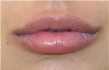Lip Augmentation / Enhancement After Photo by Richard Reish, MD, FACS; New York, NY - Case 30933