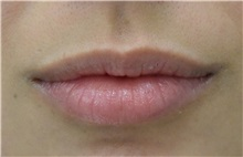 Lip Augmentation / Enhancement Before Photo by Richard Reish, MD, FACS; New York, NY - Case 30933