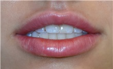 Lip Augmentation / Enhancement After Photo by Richard Reish, MD, FACS; New York, NY - Case 30935