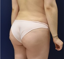 Buttock Lift with Augmentation After Photo by Richard Reish, MD, FACS; New York, NY - Case 30936