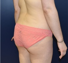 Buttock Lift with Augmentation Before Photo by Richard Reish, MD, FACS; New York, NY - Case 30936
