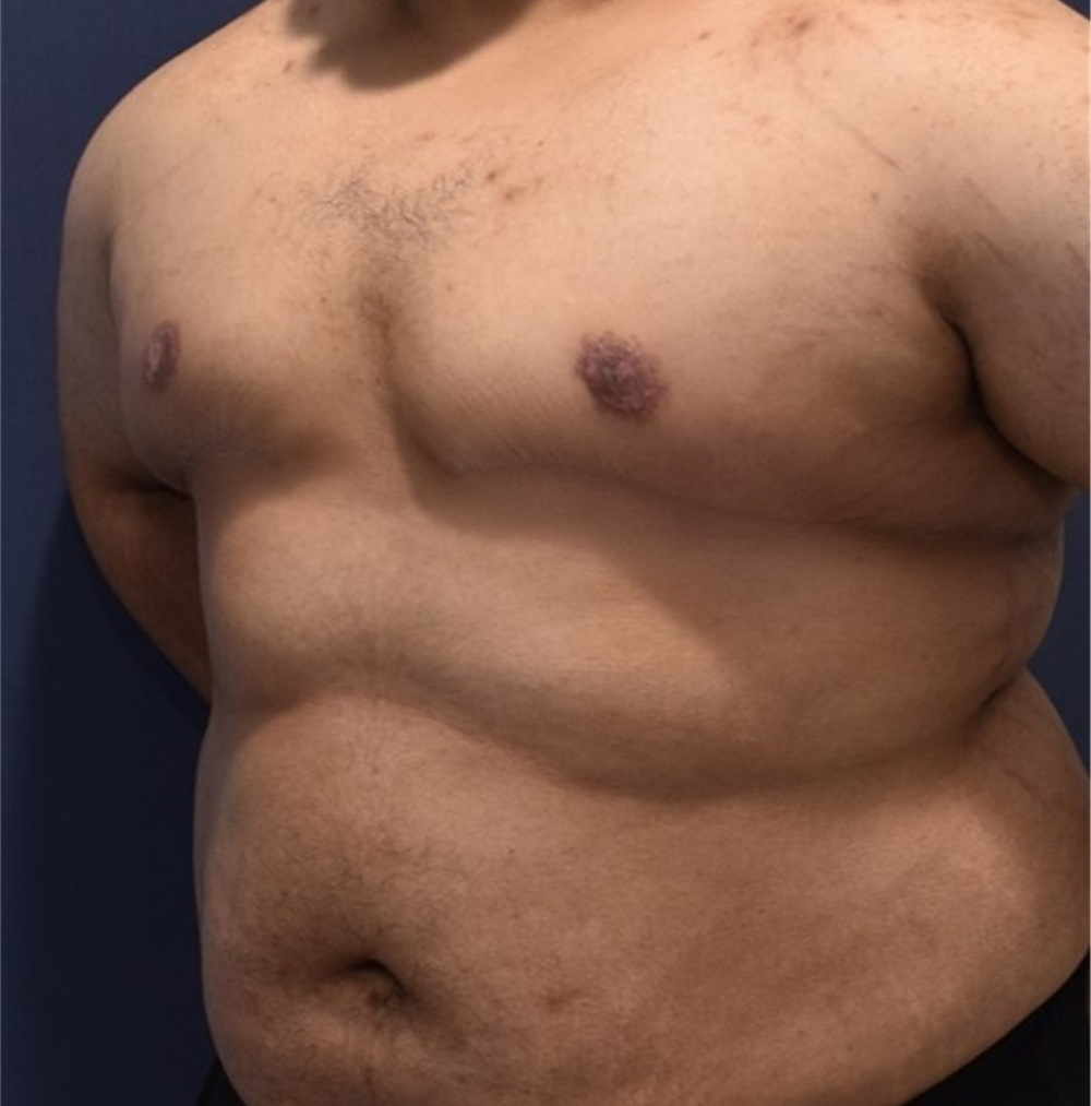 breast New reduction york
