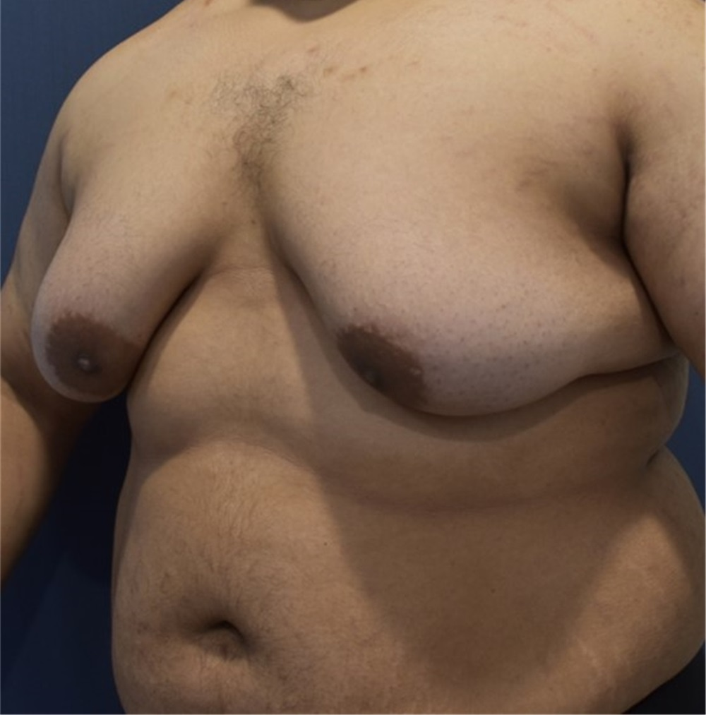 york male breast reduction New