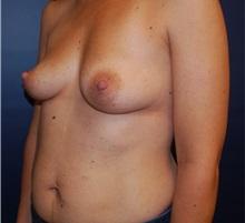 Breast Augmentation Before Photo by Richard Reish, MD, FACS; New York, NY - Case 30938